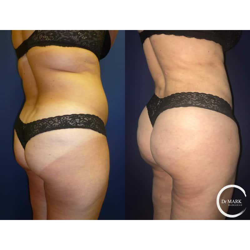 Brazilian butt lift cosmetic surgeon frisco texas