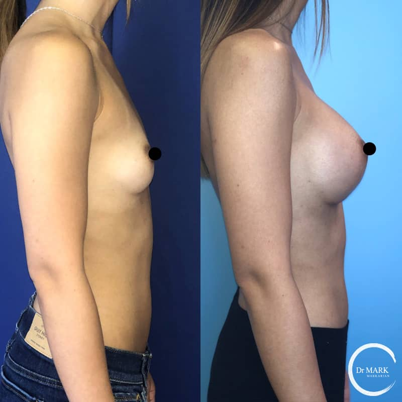 Breast taping