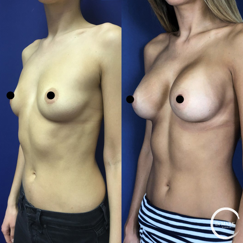Breast Augmentation North Shore Before and After