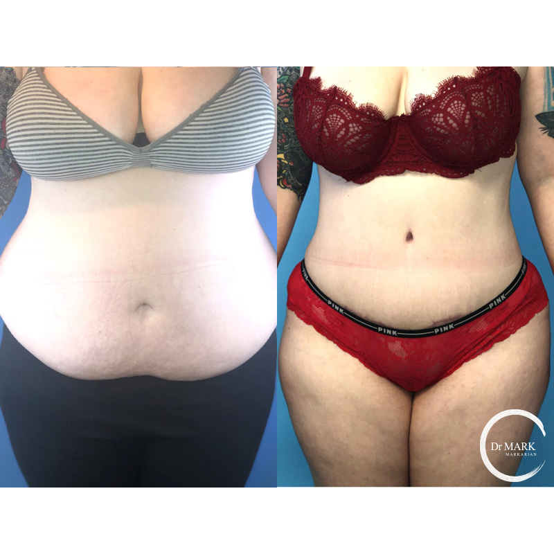 Tummy Tuck Before After North Shore