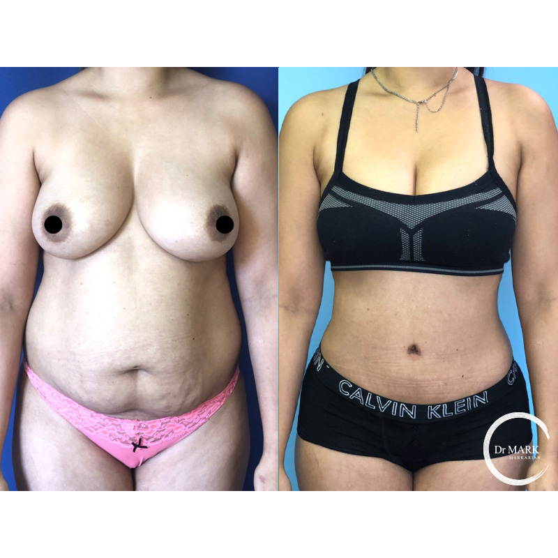Tummy Tuck Cambridge Before After